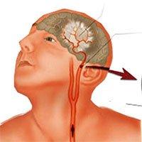 Bệnh rối loạn tuần hoàn não: Nguyên nhân, triệu chứng và cách điều trị