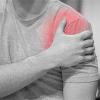 Bệnh viêm cơ là gì?