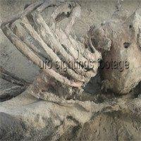 Bí ẩn bộ xương