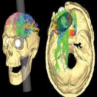 Bí ẩn trong não của một người bị đâm xuyên đầu