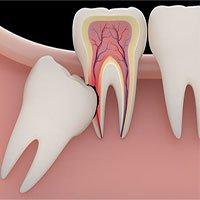 Biến chứng nguy hiểm khi răng khôn mọc ngầm