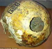 Ca phẫu thuật hộp sọ kỳ bí cách đây 2300 năm