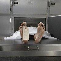 Cách khám nghiệm tử thi mới không cần mổ xác chết