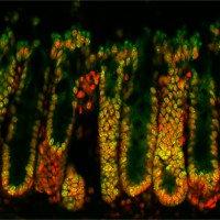 Cách vi sinh vật trong ruột