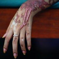 Cách xử lý khi cơ thể bị tiếp xúc với axit