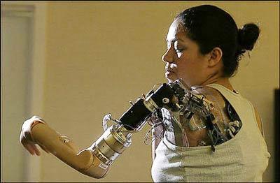 Cảm biến quang học giúp não kiểm soát chân tay giả