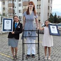 Căn bệnh khiến cô gái Tây Ban Nha cao hơn 2m