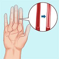 Cẩn thận với căn bệnh khiến ngón tay ngón chân bạn đổi màu trắng xanh khi gặp trời lạnh