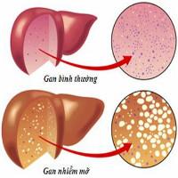 Cảnh giác dấu hiệu bệnh gan nhiễm mỡ