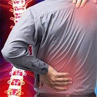 Cảnh giác với những cơn đau lưng
