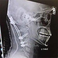 Chàng trai 22 tuổi gây chấn động y học vì sống sót sau tai nạn