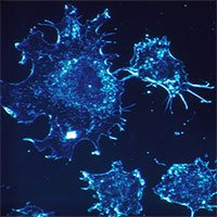 Chỉ với công nghệ này, các tế bào ung thư sẽ