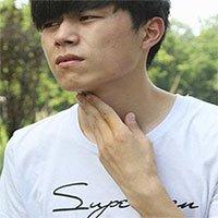 Có đờm trong cổ họng mà lỡ nuốt xuống có ảnh hưởng đến sức khỏe hay không?
