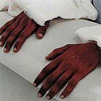 Cô gái được ghép tay từ nam thanh niên da đen, 2 năm sau điều kỳ diệu bỗng xảy ra