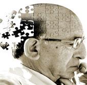 Có thể chữa Alzheimer bằng... máu người
