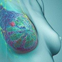 Dấu hiệu nhận biết một số loại ung thư thường gặp