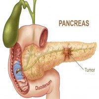 Dấu hiệu nhận biết nguy cơ ung thư tụy