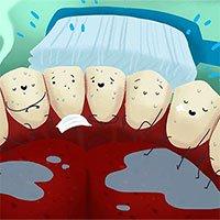 Điều gì xảy ra nếu bạn ngừng đánh răng?