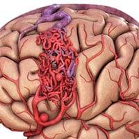 Đột biến gene - nguyên nhân gây dị dạng mạch máu não thể hang