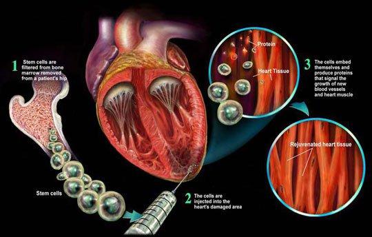 Dùng tế bào gốc mô mỡ điều trị bệnh lý xương khớp