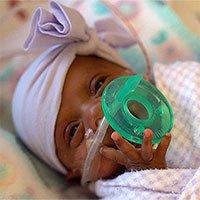 Em bé nhỏ nhất thế giới sống sót kì diệu dù có kích thước chỉ bằng một… quả táo