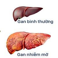 Gan nhiễm mỡ: Nguyên nhân, triệu chứng và cách điều trị