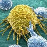 Giải đáp 11 thắc mắc phổ biến về ung thư