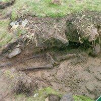 Hài cốt nghìn năm còn nguyên da phát lộ sau bão ở Ireland