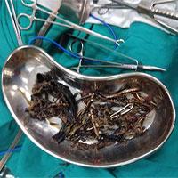 Hãi hùng 1,5kg kim loại được tìm thấy trong dạ dày một người phụ nữ