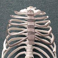 Hàn Quốc: Ca ghép xương ngực nhân tạo bằng công nghệ in 3D đầu tiên