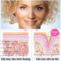 Hiểm họa cho làn da từ tia UV trong ngày nắng nóng
