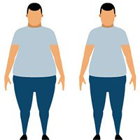 Hiểu về phẫu thuật giảm béo: Phương pháp cứu cánh cho những người thừa cân quá độ