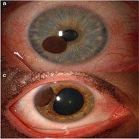 Hóa ra tròng mắt cũng có thể bị ung thư, và những gì xảy đến sau đó sẽ khiến bạn phải giật mình