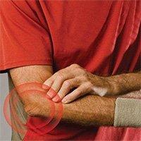 Hội chứng tennis elbow là gì?