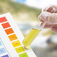 Hướng dẫn cách đọc kết quả xét nghiệm nước tiểu