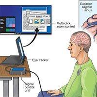 Kết nối não người với máy tính qua… mạch máu