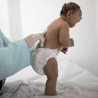 Khẳng định chắc chắn virus Zika gây ra chứng teo não