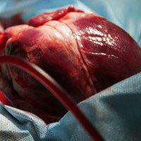 Khỉ đầu chó mang tim lợn trong hơn hai năm