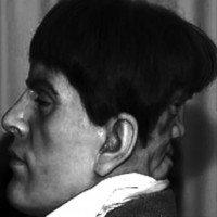 Khuôn mặt ma quái sau gáy người đàn ông khiến y học bối rối