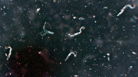 Ký sinh trùng trong bọ xít hút máu đã lây qua chuột