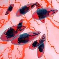 Ký sinh trùng trong thịt chưa nấu chín có thể gây ung thư não