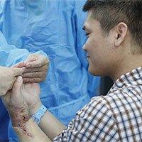 Lần đầu thế giới, bác sĩ Việt ghép tay của người sống cho bệnh nhân