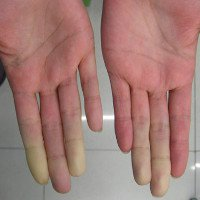 Lupus, bệnh nguy hiểm tấn công phụ nữ trẻ