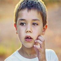 Lưu ý phòng và trị vết côn trùng cắn cho trẻ nhỏ