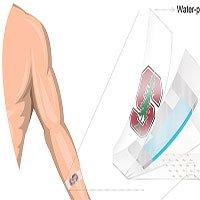 Miếng dán có thể đo cortisol trong mồ hôi giúp phát hiện bệnh