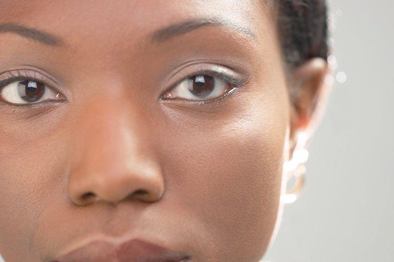 Mô sụn từ mũi có thể trị bệnh viêm khớp