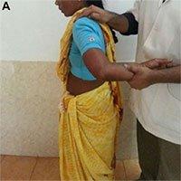 Một phụ nữ Ấn độ có thể xoay cánh tay 180 độ