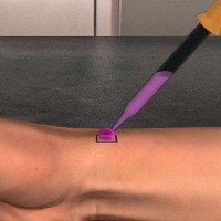 Mỹ phát triển siêu chip giúp chữa lành vết thương
