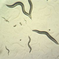Năm loại vi khuẩn kháng kháng sinh đặc biệt nguy hiểm