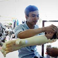 Nam sinh chế tạo bàn tay robot giá rẻ cho người khuyết tật